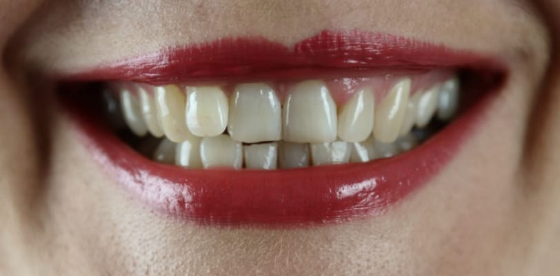 how-to-have-healthy-gums-naturally