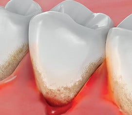 How to Stop Bleeding in The Gums