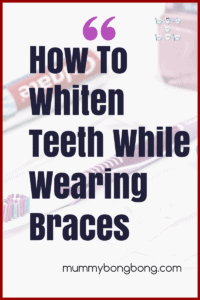 How To Whiten Your Teeth While Wearing Braces
